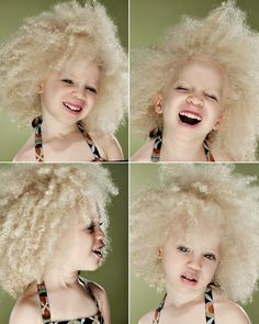 Ava Clarke Edney is a child with Albonism who has natural hair
