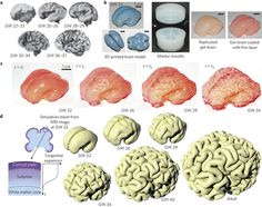 Image result for cortical convolutions
