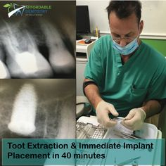 🍎Tooth Extraction & Immediate Implant Placement in 40 minutes! Call Us Today For Your Free Exam & Xray. 🍏Affordable Dentistry of Hollywood 👉http://www.affdentistry.com 🏥Address: 2219 Hollywood Blvd #104, Hollywood, FL 33020 📞Ph & Emergency 24/7: (786)808-9988, (954)589-2176 🕙Mo to Fr 9am-6pm; Sa 9am-1pm #affdentistry #miamidentist #miamiorthodontist #miamismiles #miamibeauty #miamilife #brickell #miamievents #downtownmiami #miamistyle #southmiami #miamiart #southbeachmiami #miamiliving…
