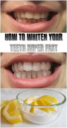 Natural Teeth Whitening How to whiten your teeth super fast - You should not spend money on teeth whitening anymore. Here are some really efficient ways to whiten your teeth at home, cheap and natural. Teeth Whitening Procedure, Teeth Whitening Remedies, Natural Teeth Whitening, Whitening Kit, Skin Whitening, Get Whiter Teeth, Teeth Bleaching, Stained Teeth, White Teeth
