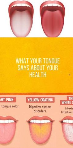 What Your Tongue Says About Your Health Healthy Low Calorie Snacks, Healthy Lunches For Work, Healthy Sweet Snacks, Health And Fitness Articles, Health Advice, Fitness Nutrition, Fitness Goals, Banana Recipes Clean Eating, Healthy Eating Recipes