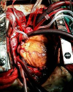 Open heart surgery is amazing! Yes, I've had my hand on a heart in an open chest just like this one.