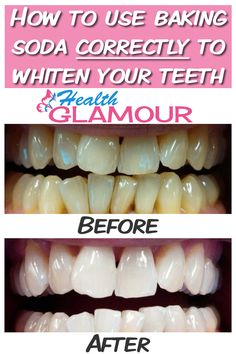 You should not spend money on expensive products if you have the yellowish teeth problem. Here is the most efficient, natural method to whiten your teeth!