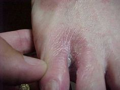 Athlete's foot (and all other fungal infections).         Dab vinegar directly onto the affected areas.