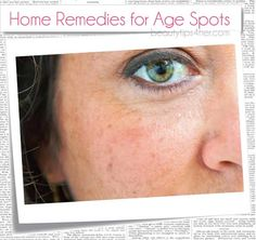 Home Remedies For Age Spots – Age Graciously with Natural Remedies | Beauty and MakeUp Tips