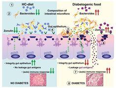 Tight junctions, intestinal permeability, and autoimmunity: celiac disease and type 1 diabetes paradigms - http://www.ncbi.nlm.nih.gov/pubmed/19538307