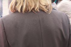 L'importanza di scegliere lo shampoo giusto, o quanto meno, evitare abiti scuri.