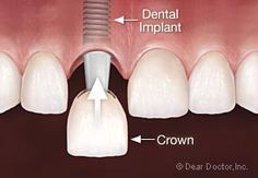Single Tooth Replacement: Immediately (at the same time an implant is placed) or after a period of healing, an abutment is attached to the i...