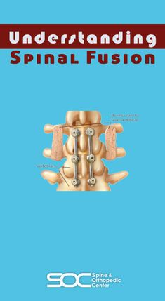 Spinal fusion is a surgical procedure that helps to relieve back pain in the vertebrae (spinal bones) by fusing two or more vertebrae together to reduce motion. Spinal Stenosis Treatment, Spinal Fusion Surgery, Treatment For Back Pain, Spondylolisthesis, Neck Surgery, Scoliosis Exercises, Degenerative Disc Disease, Spine Health, Relieve Back Pain