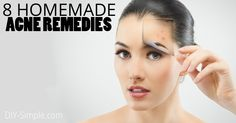 Stop using those toxic products and instead try these 8 homemade acne remedies!