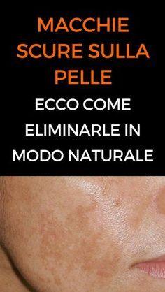 #macchie #pelle #rimedinaturali #animanaturale