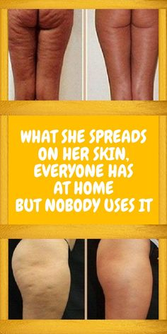 WHAT SHE SPREADS ON HER SKIN, EVERYONE HAS AT HOME – BUT NOBODY USES IT! Natural Remedies For Allergies, Natural Headache Remedies, Natural Remedies For Anxiety, Health And Wellness Quotes, Health Advice, Wellness Tips, Usa Health, Health Fitness, Lose Weight In A Week