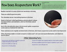 Acupuncture top 10 best majors