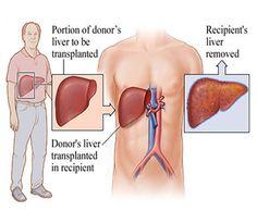 About Liver Transplant Surgery - Cost, Procedure, Doctors