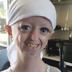 Hayley Okines, who suffered from an extremely rare genetic condition called Hutchinson Gilford Progeria Syndrome, died April 3rd.  She was 17 yrs old.