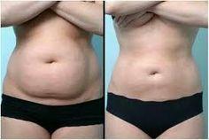 Resultado de imagen para masajes reductores antes y despues
