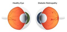Diabetic Retinal screening is a key a portion of diabetes consideration. Individuals with diabetes are at danger of harm from diabetic retinopathy, a condition that can prompt sight misfortune in the event that it's not treated.