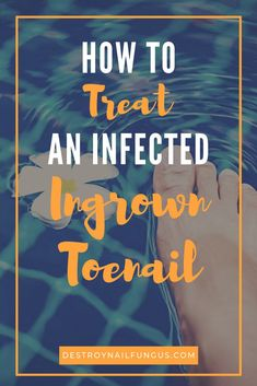 Living with an infected ingrown toenail can be extremely painful. You may find it difficult to stand on your feet, walk around, or even wear shoes. Fortunately, there are a number of ways to treat an infected toenail at home! Toe Nail Soak, Toe Nails, Get Rid Of Ringworm, Nail Infection, Health Site, Nail Fungus, Fungus Toenails