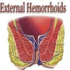 External Hemorrhoids