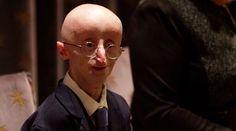 Sam Berns Dies at 17 From Rare Rapid Aging Disease