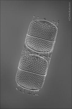 A pair of diatoms