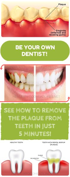 BE-YOUR-OWN-DENTIST-SEE-HOW-TO-REMOVE-THE-PLAQUE-FROM-TEETH-IN-JUST-5-MINUTES (1) #cleaningplaqueoffteeth