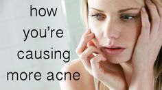How to Beat the Bad Habit That's Causing Acne: We've all done it.