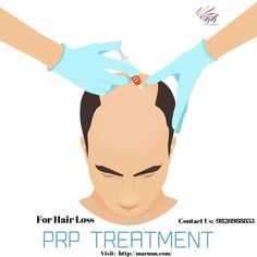 Best Hair Transplant in Indore & to 3 Inch area 45000 Rs. Prp For Hair Loss, Best Hair Transplant, Hair Clinic, Bald Hair, Skin Care Spa, Cosmetic Treatments, Hair Loss Treatment, Cosmetology, Instagram Story