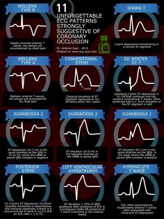 Unforgettable ECG Patterns Strongly Suggestive of Coronary Occlusion EKG InfographicsEKG Infographics Ekg Interpretation, Ecg, Nursing School Notes, Nursing Schools, Medical School, Critical Care Nursing, Cardiac Nursing, Emergency Medicine, Nursing Tips