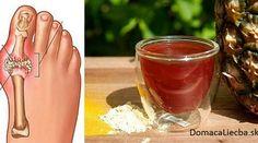 Sužujú vás bolesti kĺbov prstov, zápästí či kolien a bežné lieky zaberajú len dočasne? Tak neváhajte vyskúšať tento liečivý domáci kúpeľ.