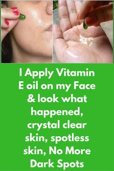 I Apply Vitamin E oil on my Face & look what happened, crystal clear skin, spotless skin, No More Dark Spots Vitamin E oil acts as both, nutrient and antioxidant for your skin. It is great for your skin, it rejuvenates your skin, it will boost production of collagen and hides all signs of ageing. It sppeds up skin regenration and your skin starts to look much younger in just a few days How to do …