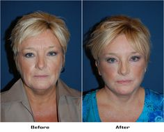 Procedures Performed: Endoscopic Brow Lift: Brow lift Eyelid: Lower Lid Blepharoplasty with SOOF Deep Plane Facelift Laser Resurfacing: eyes and mouth Dr. Freeman's Makeovers Endoscopic Brow Lift, Co2 Laser Resurfacing, Eyelid Surgery, Beauty Skin, Brows, Skin Care, Plane, Eyes, Hair