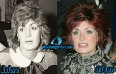 Sharon Osbourne Before and After Photos | http://plasticsurgeryfact.com/sharon-osbourne-plastic-surgery-before-and-after-photos/