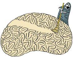 Alzheimer: Una de las epidemias del mundo moderno