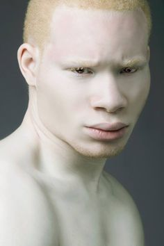 Meet The World's Sexiest Albino Model and Actor @Sir Maejor - www.SiMaejor.com