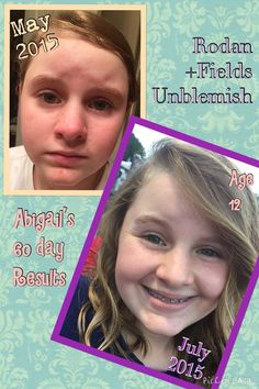 """Abigail was starting to have pre-teen acne which was a worry for her! Her mom Kristen said ~ """"Here are my daughter's before and after using Rodan+Fields Unblemish for 60 days...she had been using different acne washes from the store and they really weren't making any difference. It really started bothering her and so I switched her to Unblemish and within a within a week I noticed her skin clearing up. Abigail can now live her life confidently and stress free of acne! indra.arman@gmail.com"""