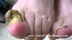 Have Fungus On Your Toes? Try These Powerful Toe Fungus Home Treatments What Causes Toenail Fungus, Toenail Fungus Home Remedies, Fingernail Fungus, Best Toenail Fungus Treatment, Foot Fungus Treatment, What Is Fungi, Fungi