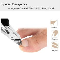 This grinder for thick toenails is an ergonomic perfection. The unique cutting-edge blade sharpening technology trims thick nails evenly without crushing and easily clipping hard reach areas. Nail Growth Polish, Thick Toenails, French Tip Acrylic Nails, Fungal Nail, Ingrown Toe Nail, Toe Nail Clippers, Coffin Shape Nails, Clean Nails, Nail Fungus