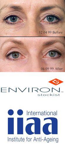 Treatment before and after Environ Vitamin facial