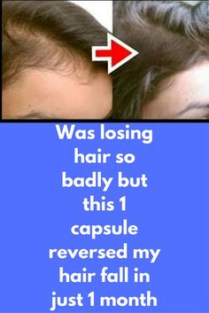 Was losing hair so badly but this 1 capsule reversed my hair fall in just 1 month Today i am going to show you how you can make vitamin e hair growth oil to controll hair fall and to get healthy strong hair within few days.this is a home made natural hair Hair Remedies For Growth, Hair Growth Treatment, Hair Loss Remedies, Hair Growth Oil, Natural Hair Growth, Biotin Hair Growth, Hair Fall Control, Hair Vitamins, Losing Hair
