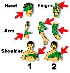 Using Emergency Bandages