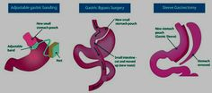Types of Bariatric Surgery for Extreme Weight Loss.