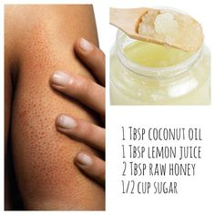 Have KP? Keratosis Pilaris occurs when hair follicles are blocked with built up keratin causing irritation, redness, bumpiness, and sometimes small whiteheads. This shows up most commonly on the lower cheeks and upper arms. I found the BEST body scrub that has cleared up all of my KP. The coconut oil and honey soften and cleanse your skin while sugar sloughs the dead skin off. The lemon juice is also antibacterial! My skin has never looked better, try it out!