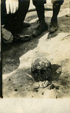 Skull, 1908 - Belle Gunness