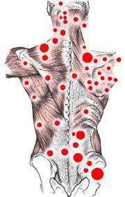 Fibromyalgia Trigger Points