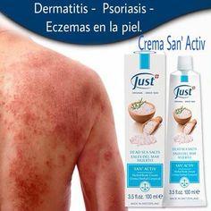 Types Of Psoriasis, What Is Psoriasis, Psoriasis Cream, Eczema Psoriasis, Plaque Psoriasis, Scalp Psoriasis Shampoo, Psoriasis Remedies, Soap Recipes, Health Products