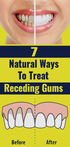 Oral Health, Health And Nutrition, Health Tips, Health And Wellness, Health Care, Health Fitness, Gum Health, Teeth Health, Best Mouthwash