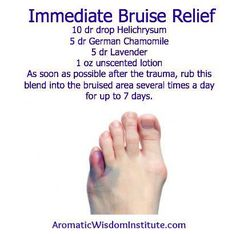 doTerra Essential Oils ~ Helichrysum + Chamomile & Lavender for Bruise relief.  www.mydoterra.com/maryhart