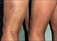 The results are in #SpiderVeins #VaricoseVeins