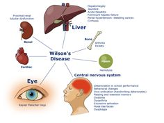 Symptoms of Wilson Disease Accumulation copper in body, symptoms not evident during birth but after 20-30 yrs. Mostly neurological, hepatic, renal, psychiatric & haematological signs. Copper collects in brain, cognitive deterioration, psychosis, depression, behavioral changes, seizures & migraine occur. Hepatic symptoms include cirrhosis, acute hepatitis, jaundice & liver failure.Golden-brown deposits in cornea, called Kayser-Fleischer rings. Hemolysis is also observed as RBC's damaged by…
